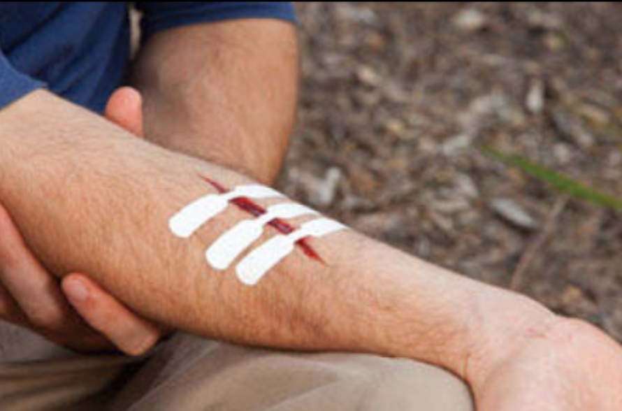 hiking first-aid
