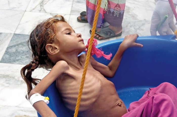 Ragehi's photos of starving villagers, seen on this and the following page, sparked a U.N. investigation into why aid wasn't reaching certain rural communities in Hajjah province, one of the hardest hit areas in Yemen's ongoing civil war.
