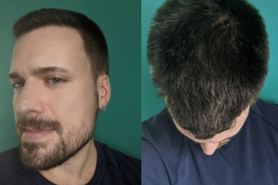Hair transplant Adam Hurly surgery progress