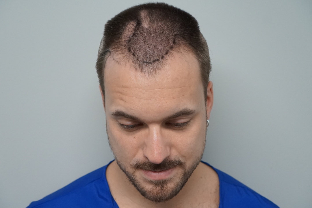 Hurly before hair transplant procedure