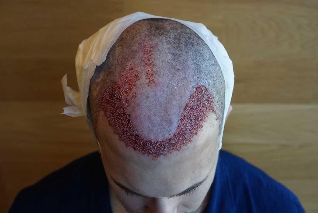 hurly post hair transplant surgery