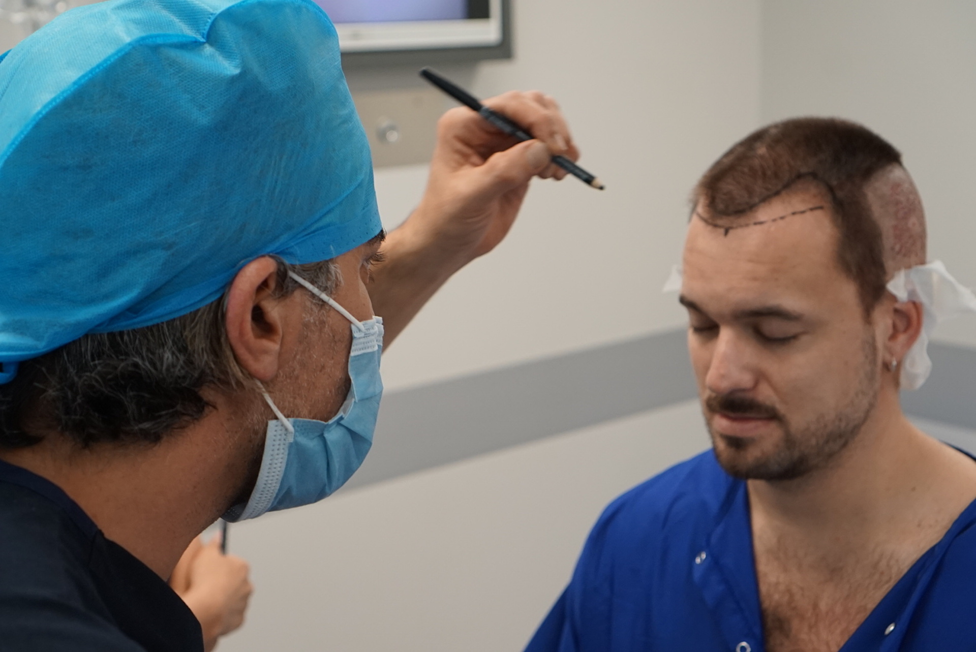 hair transplant surgery Adam Hurly