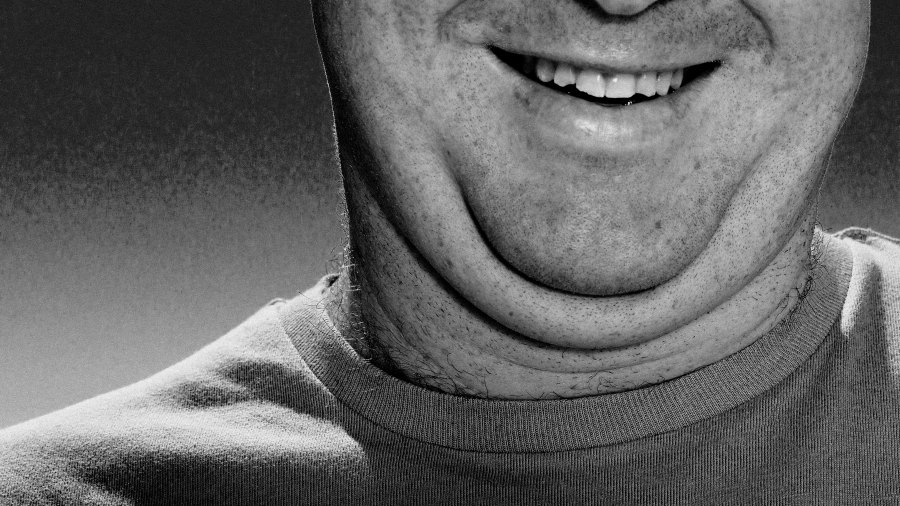 double chin Kybella