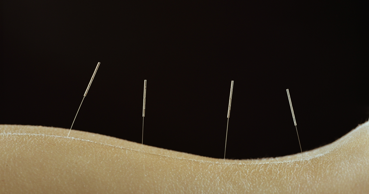 Three Things You Didn't Know Acupuncture Can Treat