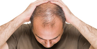 4 Ways to Fight Hair Loss