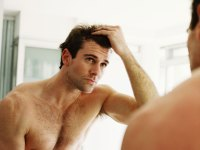 A receding hairline might reveal cancer risk