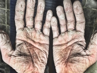 Photo: Gnarly, Gross, Blistered Hands After Arctic Rowing Expedition (Alex Gregory)