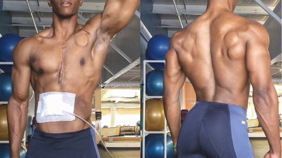 Meet the Awesomely Ripped Bodybuilder Who Has an Electronic Heart