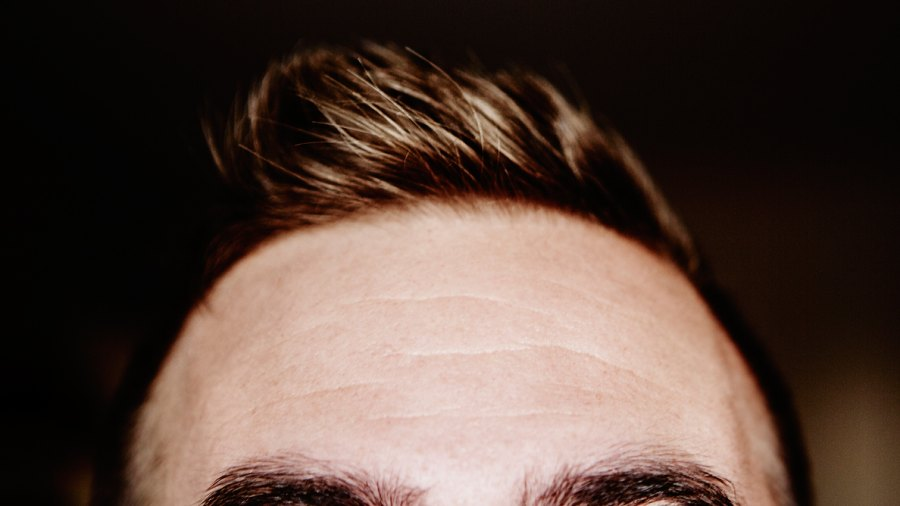 Thinning Hair Treatments: The How To Modern Guide