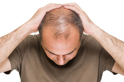 What helps hair loss for men