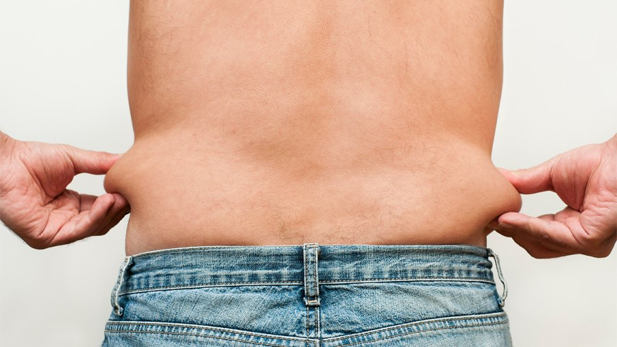 Can You Get Rid of Loose Skin After Major Weight Loss?