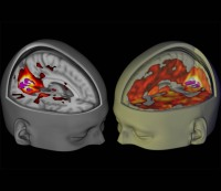 Scans of normal brains vs. brains affected by LSD /  Imperial College London