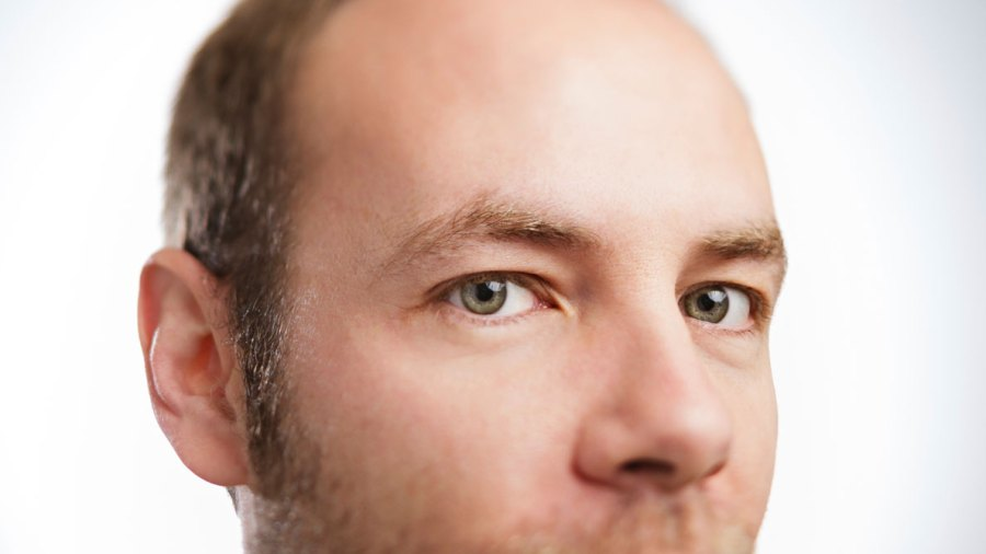 Four Steps to Prevent Hair Loss