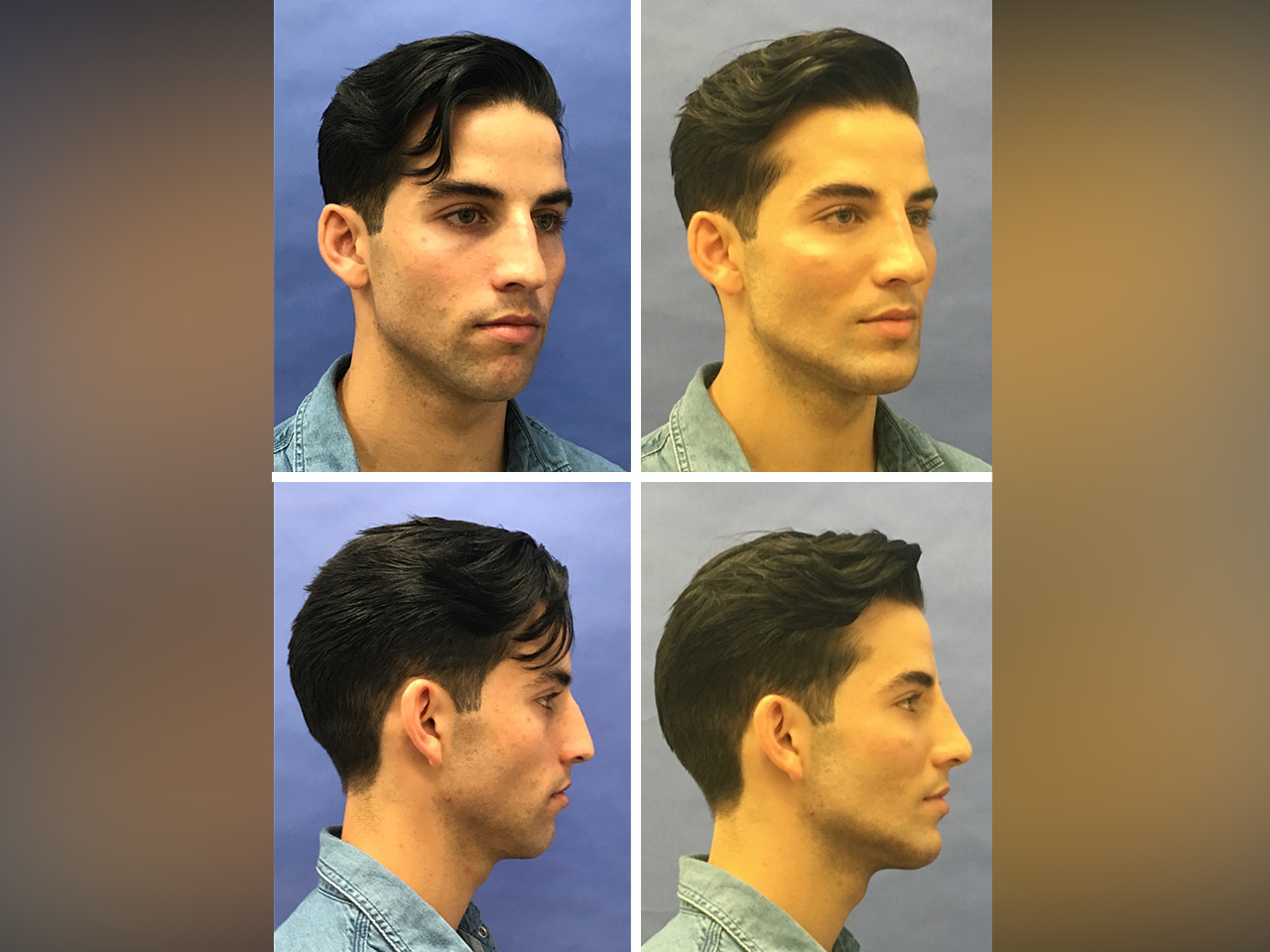 Model features male facial Facial Structure