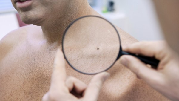 Man Getting Checked for Mole at Dermatologist