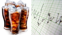 Daily Soda Intake Increases Heart Attack Risk