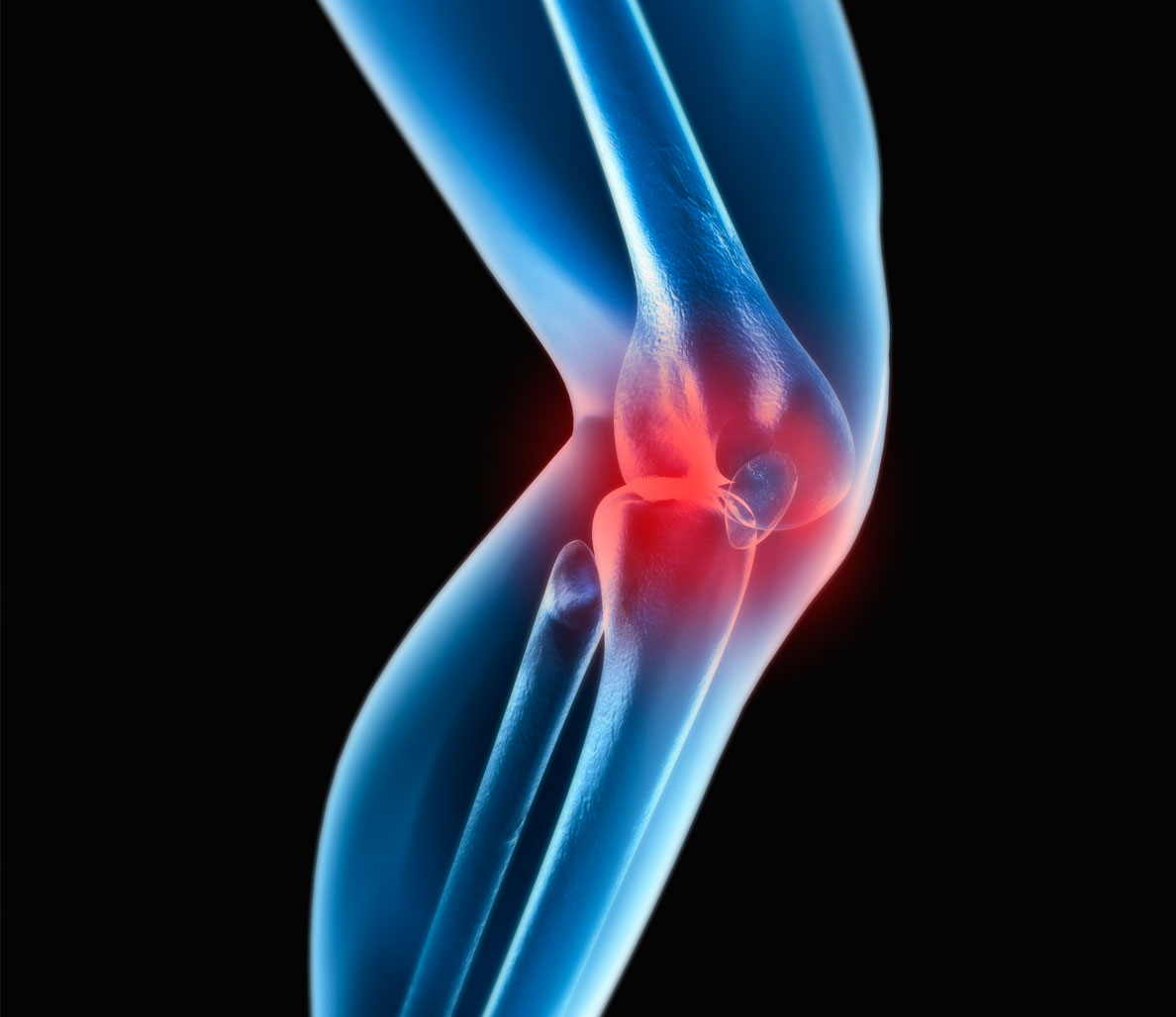 Trainer Q&A: Why Does My Knee Crack and Pop?