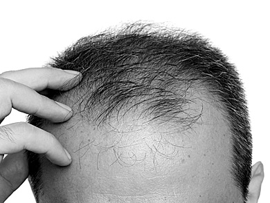mj-390_294_myths-and-facts-about-hair-loss