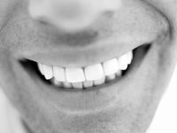 mj-390_294_the-truth-about-tooth-whitening