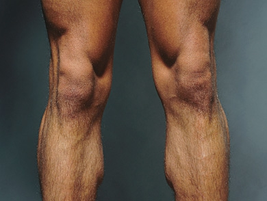mj-390_294_the-way-to-build-a-better-knee