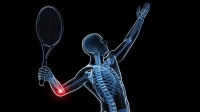 Our trainer explains how to tell if you have golfer's or tennis elbow. and then how to recover.