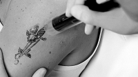 mj-618_348_how-to-remove-a-tattoo