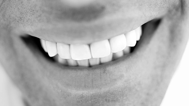 mj-618_348_the-truth-about-tooth-whitening